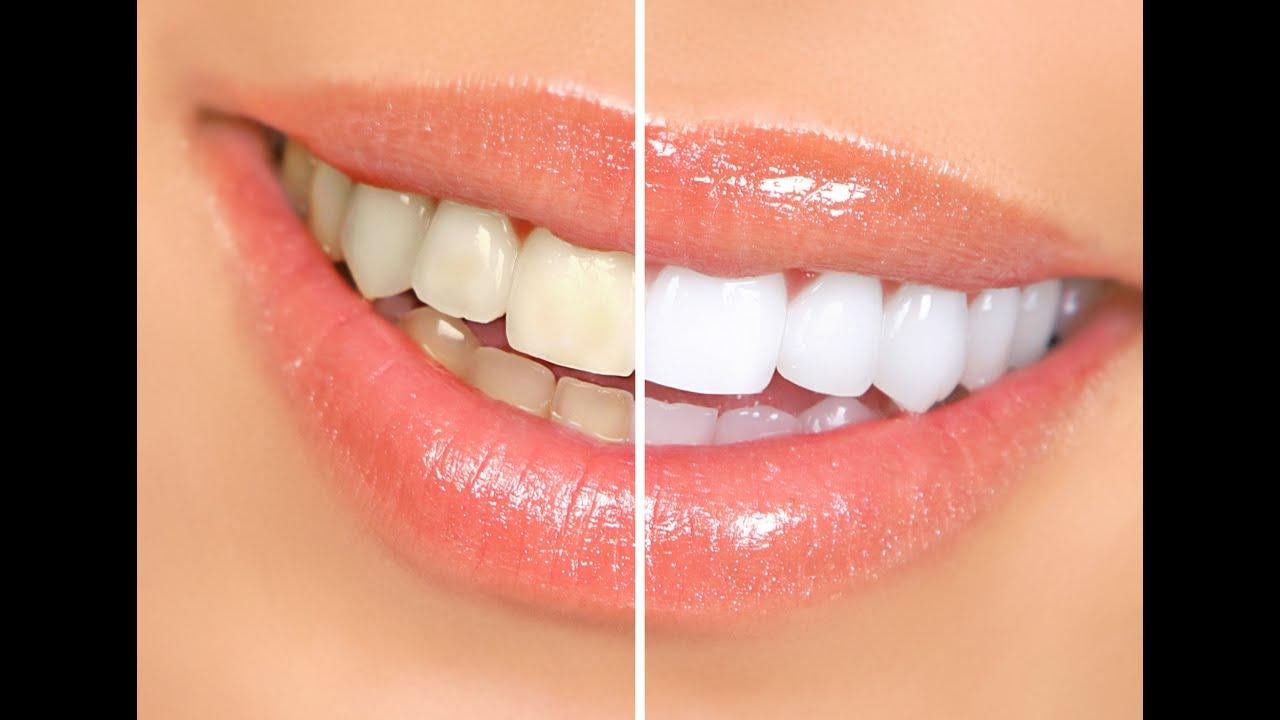 Hollywood sexy smile teeth whitener