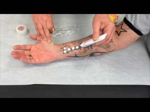 How to apply EMLA numbing cream for laser tattoo removal.