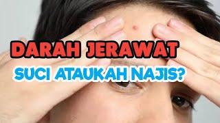 Hukum DARAH JERAWAT  Menurut Islam