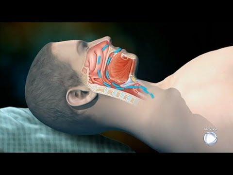 Dr. Sproesser Tira Dúvidas Sobre Problemas Do Sono