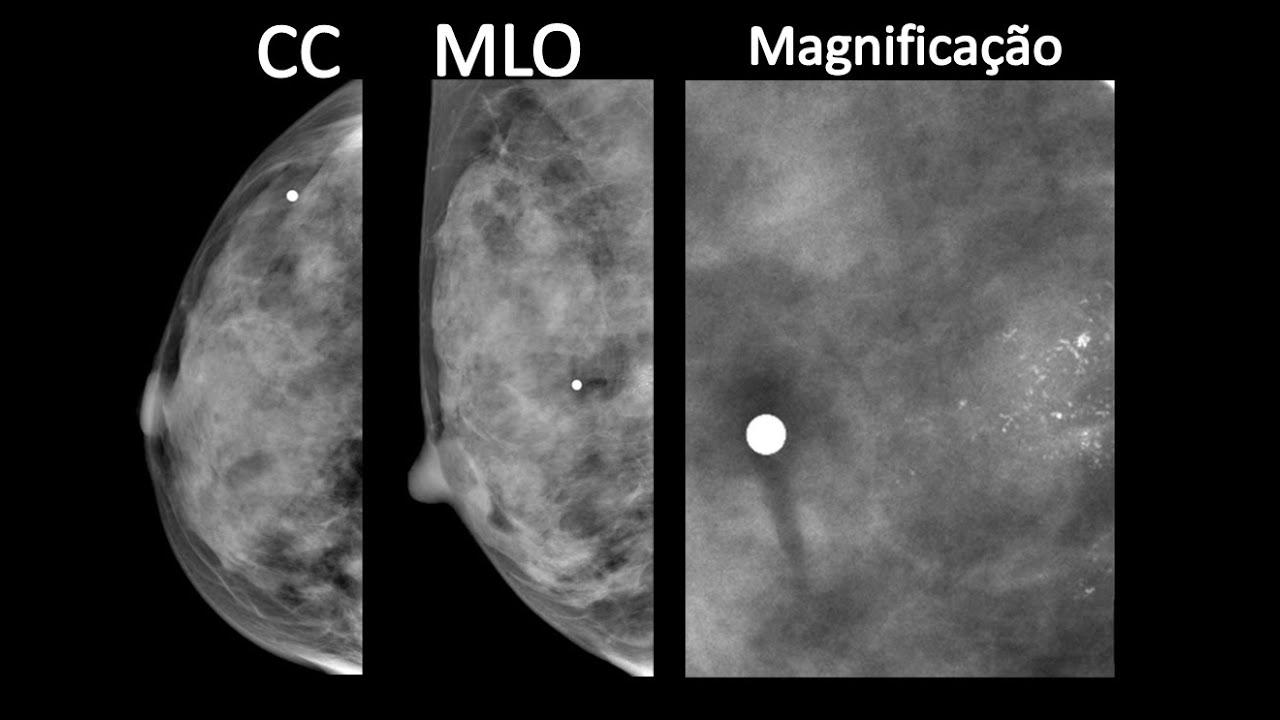 Benigno tratamento nodulo mama
