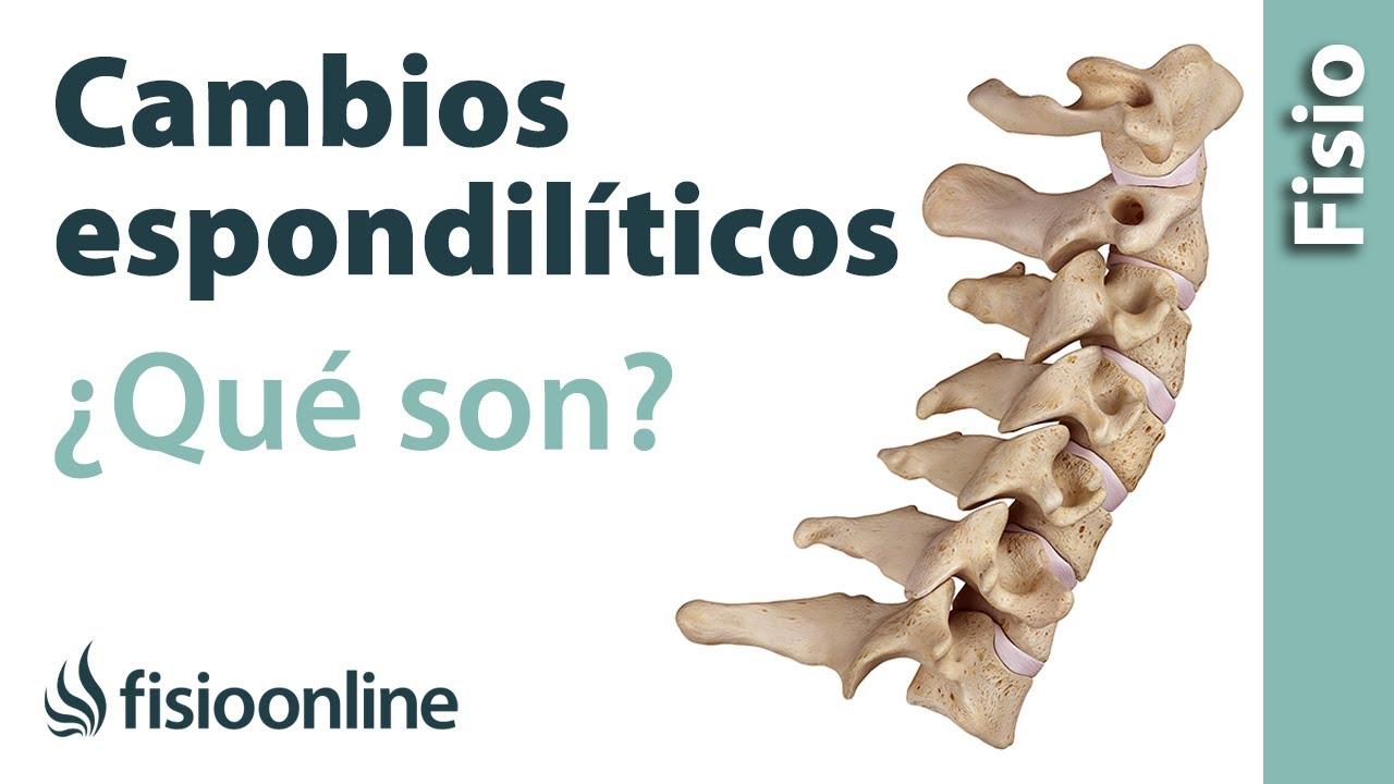 artrosicos+apofisiarios