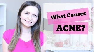 What Causes Acne & Pimples?   Acne Causes    Is Acne Genetic?