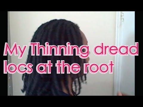 My Thinning Dread Locs At The Roots O Video Youtube