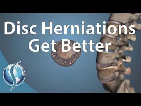 Can a Disc Herniation Heal Itself?