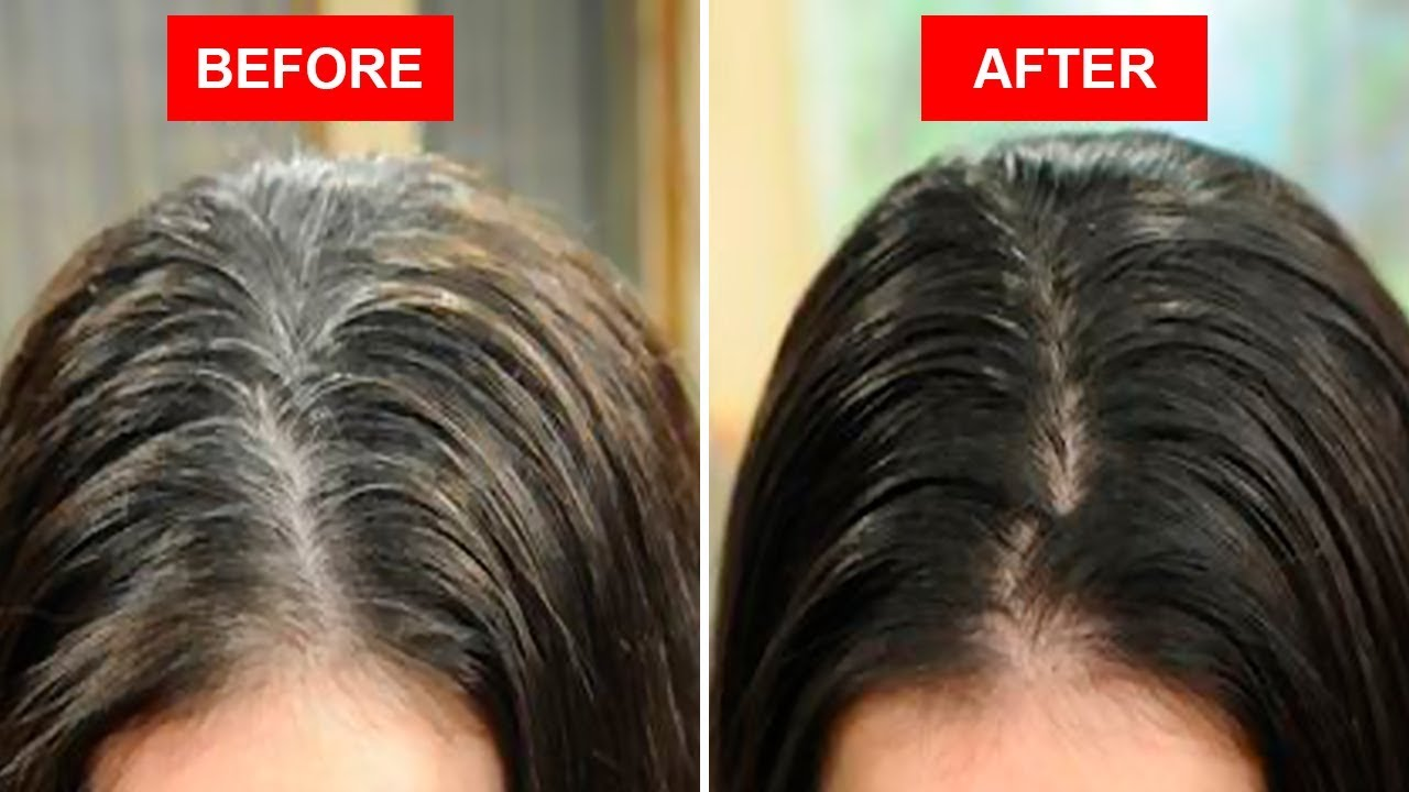 Home Remedies To Turn White Hair Black Without Chemical Dyes Youtube