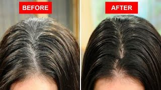 Baixar Turn White or Gray Hair to Black Naturally Using Only 2 Ingredients!