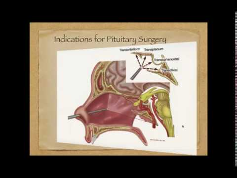 Advances in Pituitary Surgery