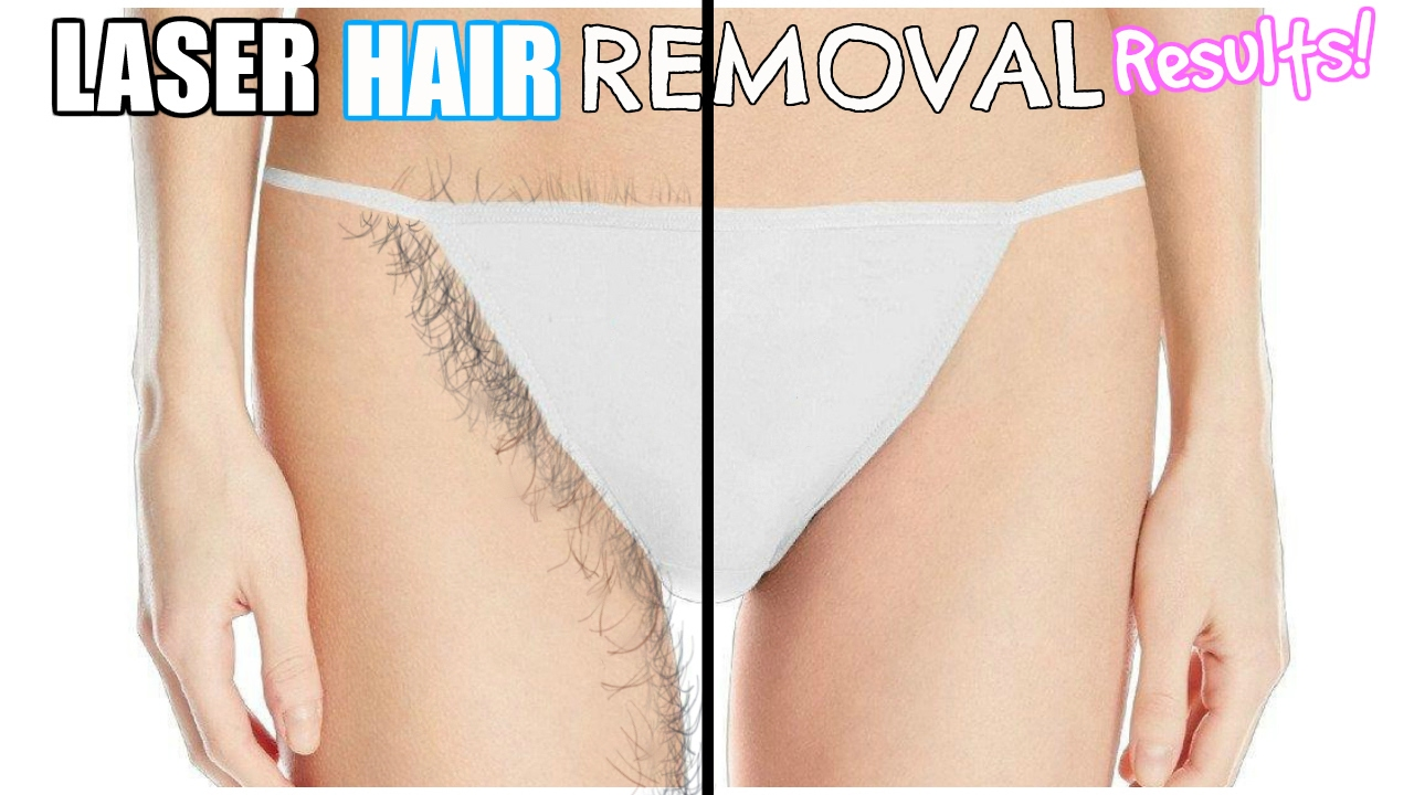 Laser Hair Removal Final Restuls Before After 6 Sessions