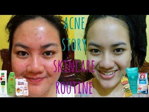 MY ACNE STORY + SKINCARE ROUTINE for ACNE SKIN | Cerita Lawan Jerawat + Skincare Jerawat (Indonesia)