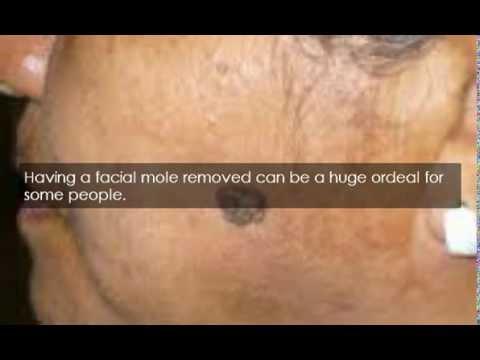 Facial mole removal nhs this