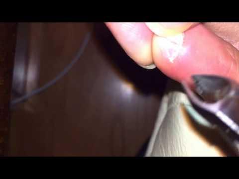 Han Chinese toenail extra pinky toenail