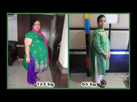 Best weight loss surgery| Mini Gastric Bypass| Punjab| Effective Obesity Treatment in India|