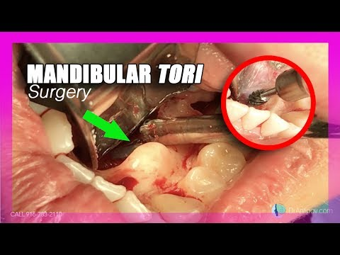 Mandibular Tori (surgery)(Removal)