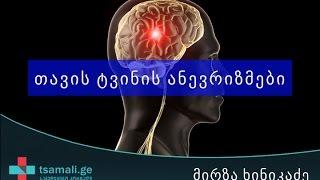 თავის ტვინის ანევრიზმები - მირზა ხინიკაძე