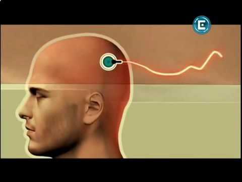 Таблетки для мозга - Ноотропил, Кавинтон, Актовегин