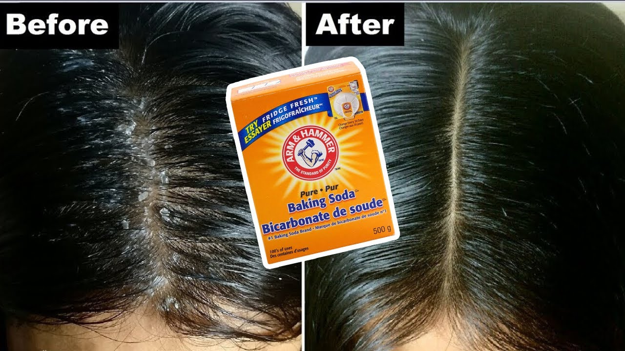 Baking soda for Dandruff: How to get rid of dandruff with baking soda: How to Get rid of Dandruff