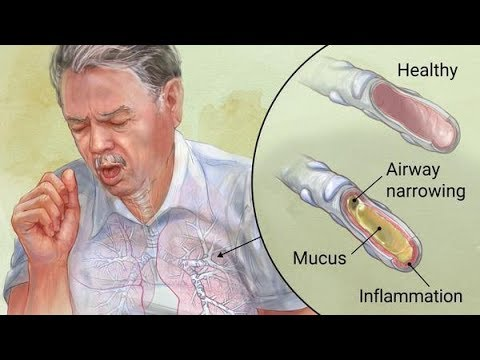 Acute Bronchitis- Causes, Symptoms, Diagnosis, Treatment
