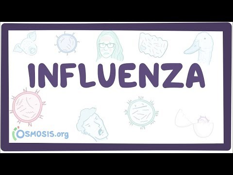 Influenza – causes, symptoms, diagnosis, treatment, pathology