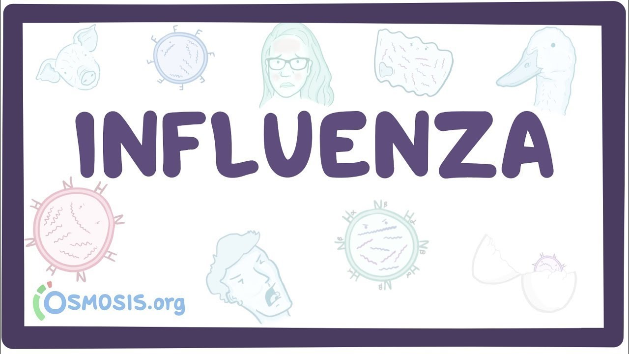 Influenza – causes, symptoms, diagnosis, treatment, pathology