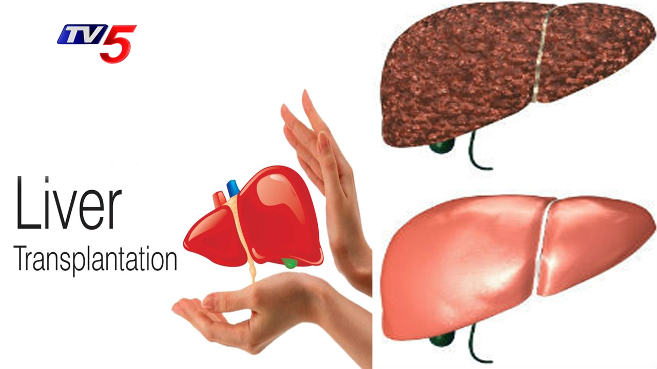 Who Should Receive Liver Transplants Custom Paper Service