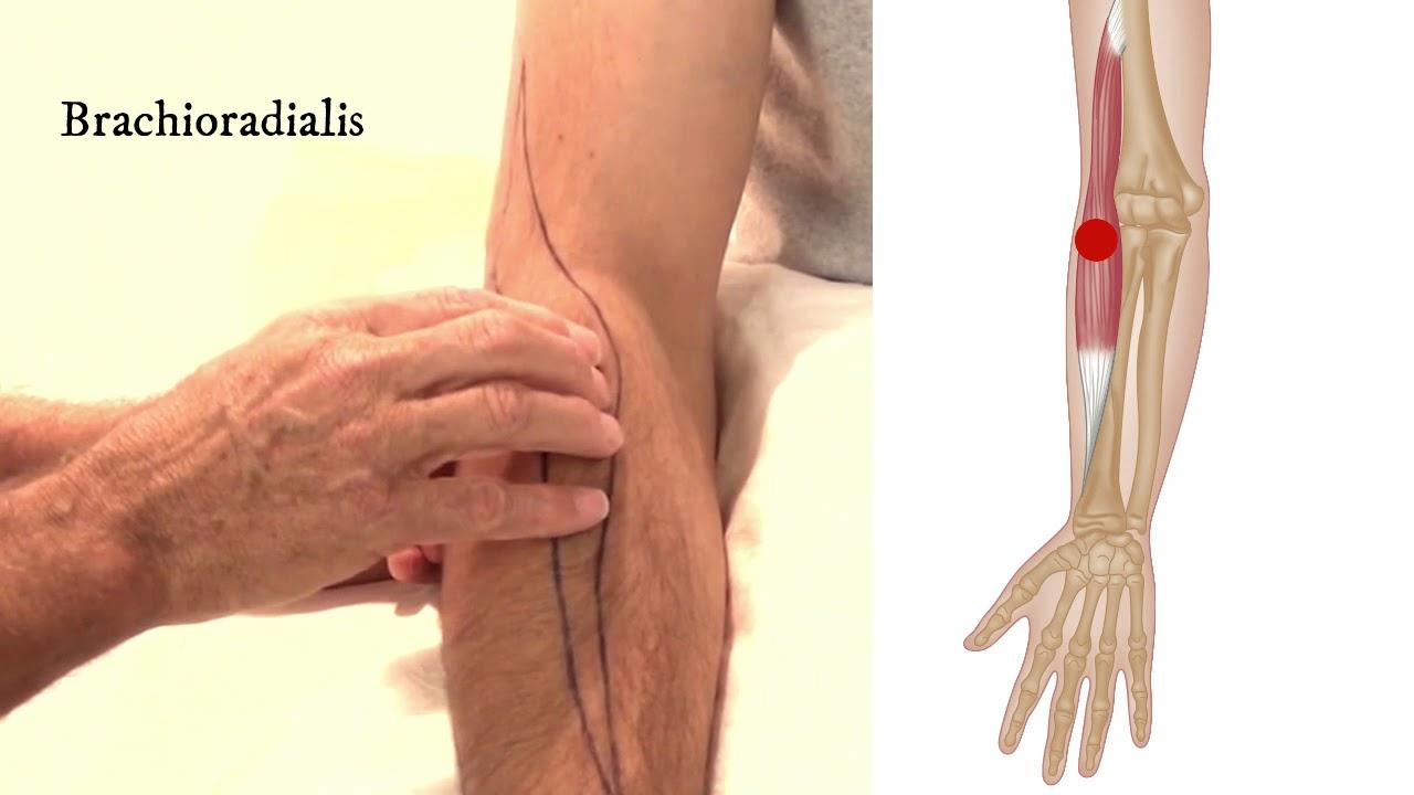 brachialis artrózis lézeres kezelése)