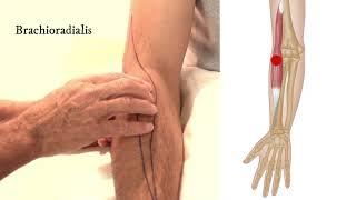 scaphoid artrosis ízületi pusztító betegség