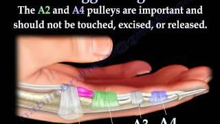 Trigger Finger and thumb - Everything You Need To Know - Dr. Nabil Ebraheim