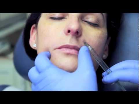 Facial Fillers & Botox
