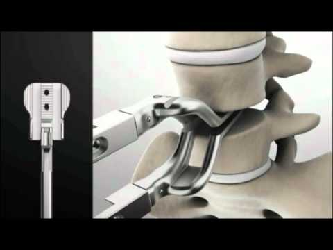 Spinal Kinetics M6-L Artificial Disc Replacement: Surgery Animation