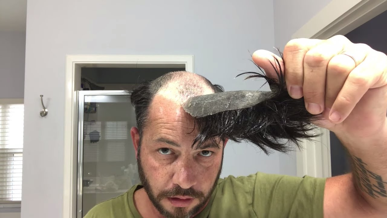 How to Remove Your Hair System or Hair Replacement The Right Way