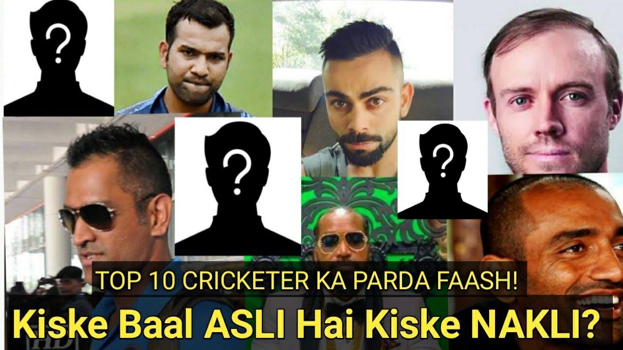 Top 10 Hair Transplant Cricketers of IPL Season 13 || Cricket Celebrity Hair Transplant