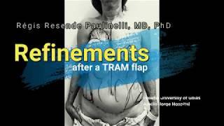 Refinements after a TRAM flap 2019