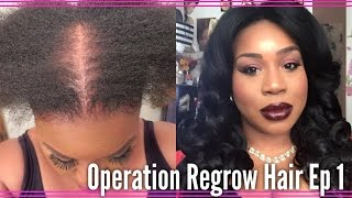 My Journey To Regrow My Hair Using Rogaine For Women| EP 1