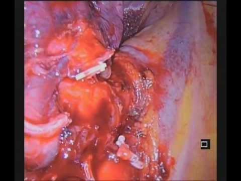 Uniportal VATS bilobectomy and superior lower lobe segmentectomy