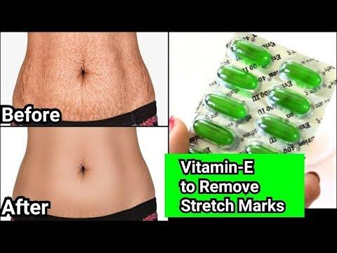 स्ट्रेच मार्क्स को दूर करें मात्र 7 दिनों में || Remove Stretch Marks in just 7 Days