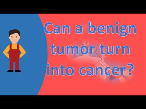 Can a benign tumor turn into cancer ? |Best Health Answers
