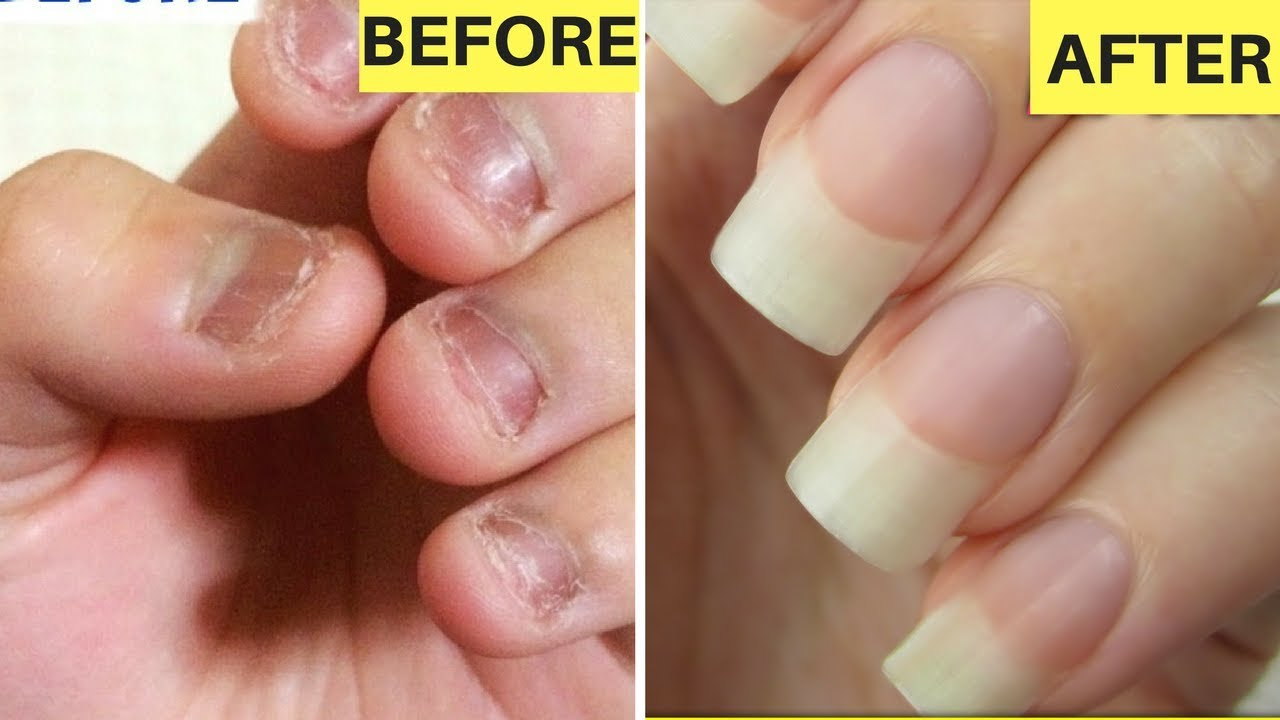 HOW TO GROW LONG STRONG NAILS FAST AT HOME - GUARANTEED RESULTS ...