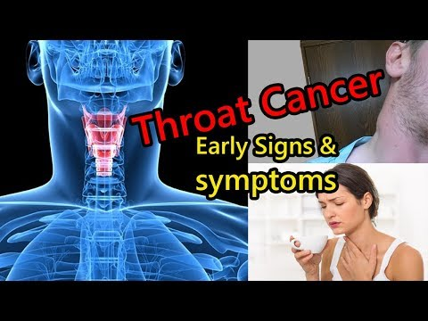 Early Signs Of Throat Cancer That Is Growing In Your Body