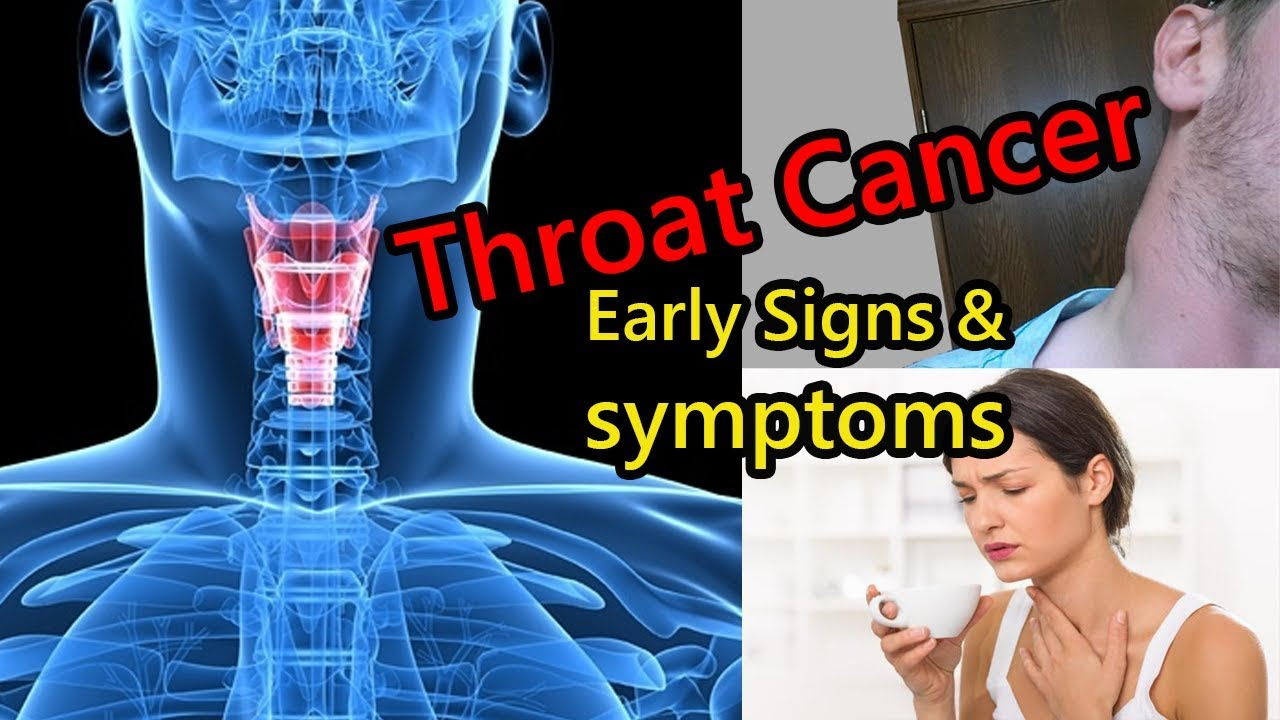Early Signs Of Throat Cancer That Is Growing In Your Body -9142