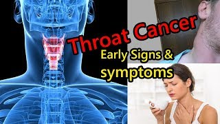 Early Signs of Throat Cancer That is Growing in Your Body screenshot 1