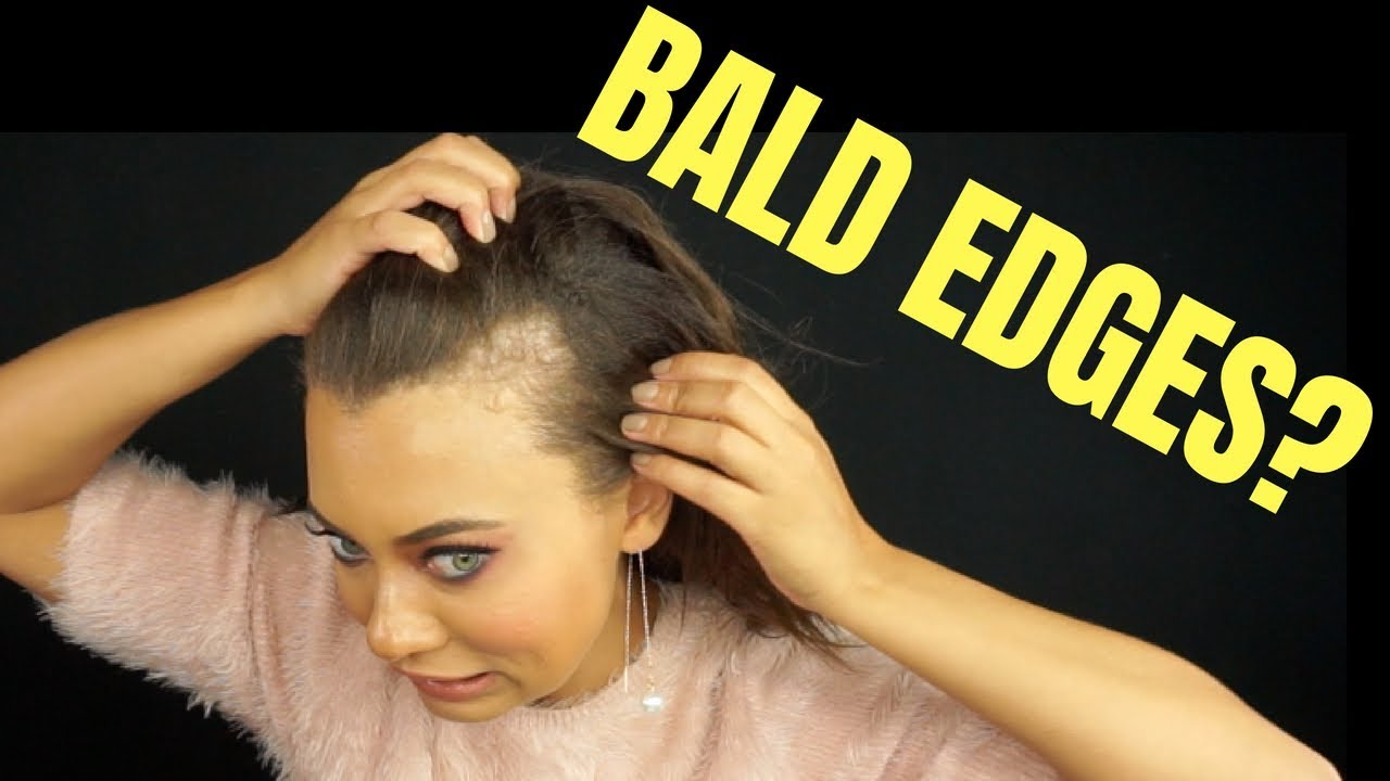 bald patch in hairline