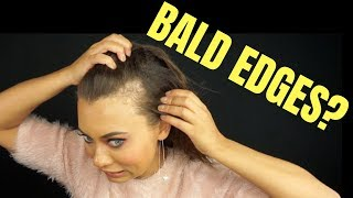 BALD EDGES? WEIRD HAIRLINE? HOW TO HIDE BALD SPOTS OR WEIRD HAIRLINES! | Brittney Gray