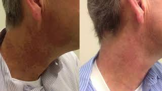 Intense Pulsed Light Therapy (IPL) For Poikiloderma