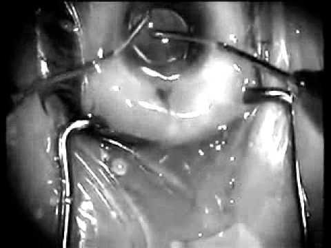 Objectum Sexual - Surgical Procedure