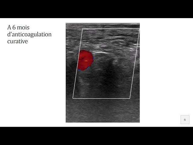 Complication par thrombose veineuse fémorale après crossectomie - Société Française de Phlébologie