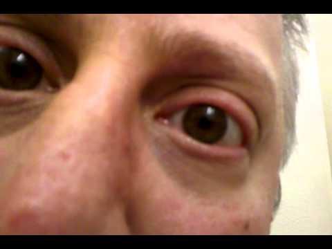 My eye twitching. - YouTube