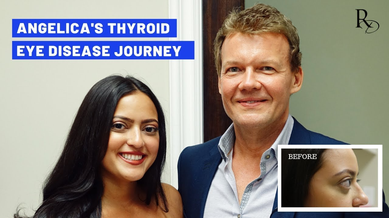 Angelica S Thyroid Eye Disease Journey Dr Raymond Douglas Youtube