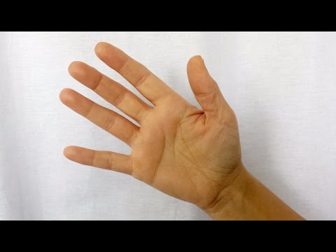 medicament pentru inflamații la nivelul articulațiilor