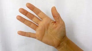 degetul negru pe jos în varicoză tromboza sau vene varicoase